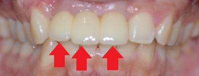 上の前歯3本(向かって左2本、右1本、計3本)がインプラント