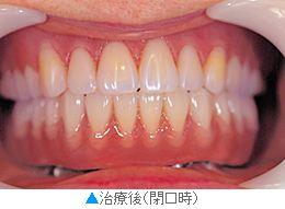 向かって左下、前から2本目の歯がインプラント