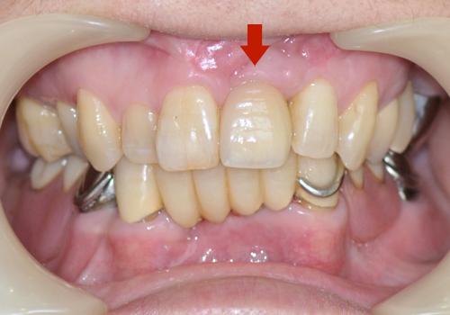 右上前歯がインプラント