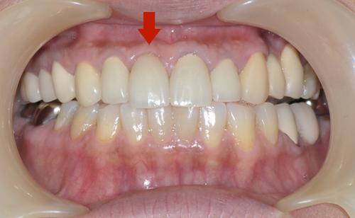 左上前歯がインプラント