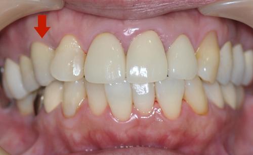 向かって左上の、前から3本目の歯がインプラント